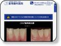 宮塚歯科医院 セルバ西側にある歯医者さん。正しい歯科治療、正しい医療をコンセプトに甲南山手で10年の歴史がある歯医者さんです。