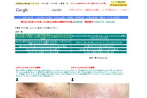 火傷跡 ケロイド やけど痕 火傷痕 治療 サイトのキャプチャー画像