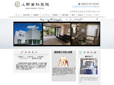 歯医者|上野歯科医院|広島県安芸高田市